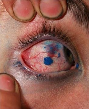 Premier tatouage des yeux au monde_3
