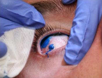 Premier tatouage des yeux au monde_4